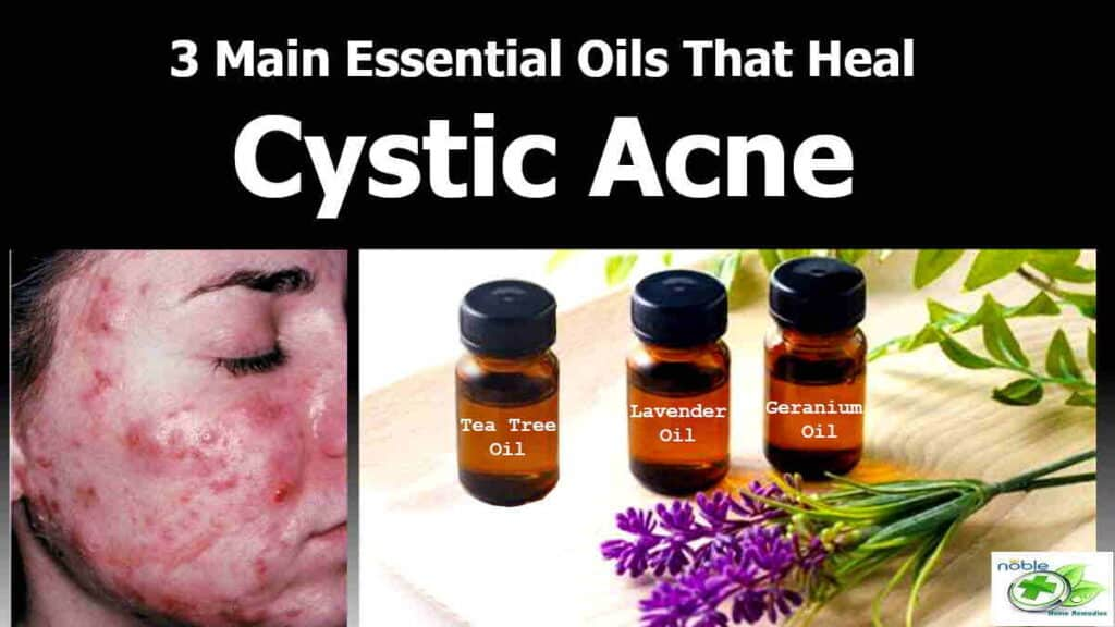Essential Oils for Cystic Acne