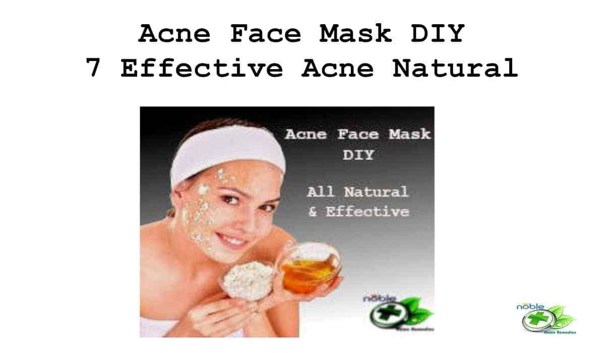 Acne Face Mask DIY – 7 Effective Acne Natural Remedies