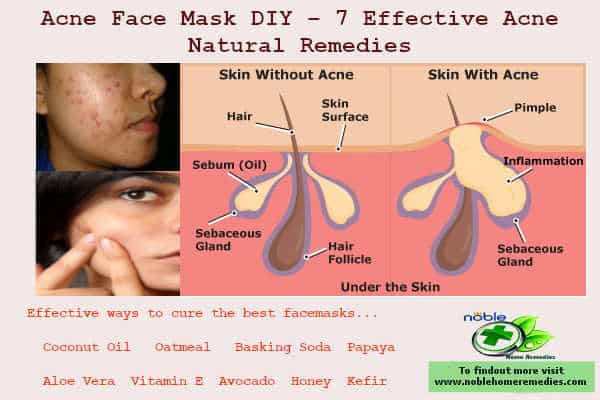 Acne Face Mask Diy 7 Effective Acne Natural Remedies