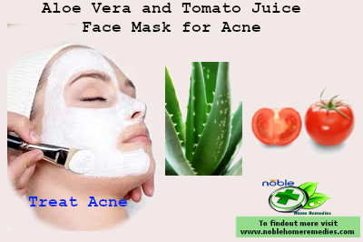 Aloe Vera and Tomato Juice Face Mask