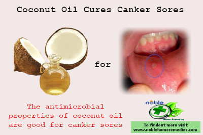 Canker Sores Home Remedies 10 Faster Ways Noble Home