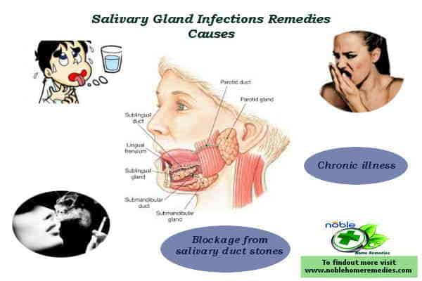 Cause of Bacterial Salivary gland infections