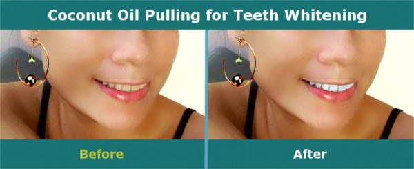Coconut Oil Pulling - Teeth Whitening - Before and After