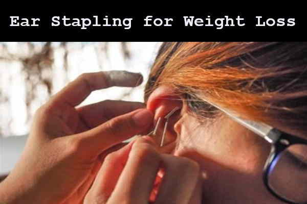 Chinese traditional acupuncture ear stapling for weight loss