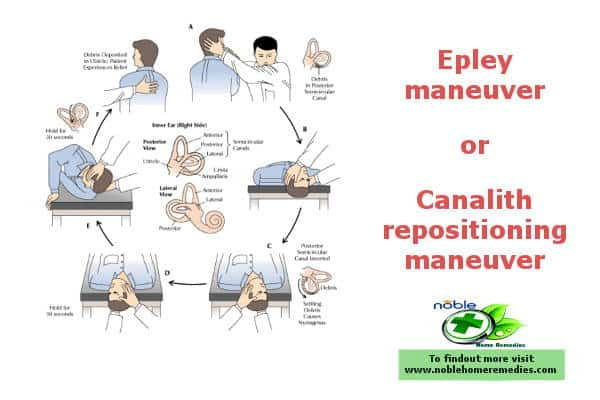 Epley maneuver or Canalith repositioning maneuver
