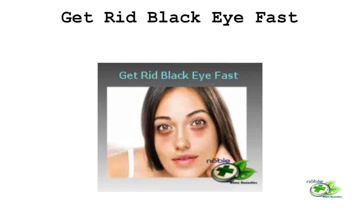 Get Rid of Black Eye Fast