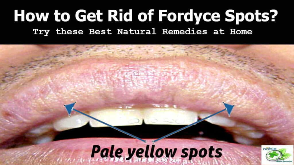 Natural remedies to get rid of Fordyce Spots on lip and genitals