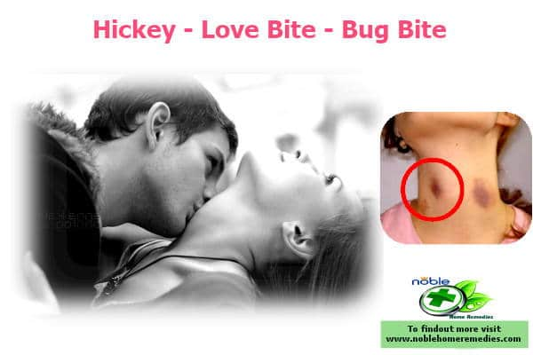 How Long Do Hickeys Last, on Your Neck, Breast, Healing, With ...