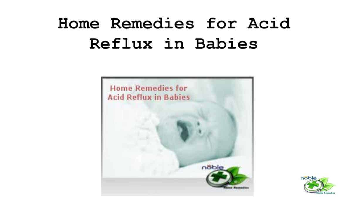 Home Remedies for Acid Reflux in Babies