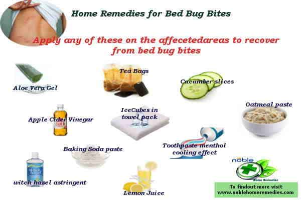 Home Remedies for Bed Bug Bites - Guide