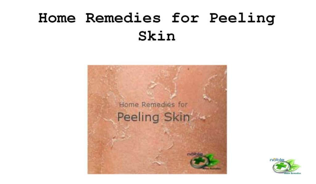 Get rid of peeling skin naturally, fast and safe