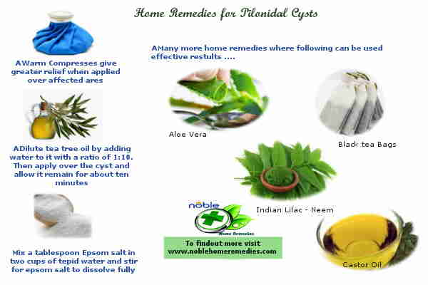 Home Remedies for Pilonidal Cysts Guide