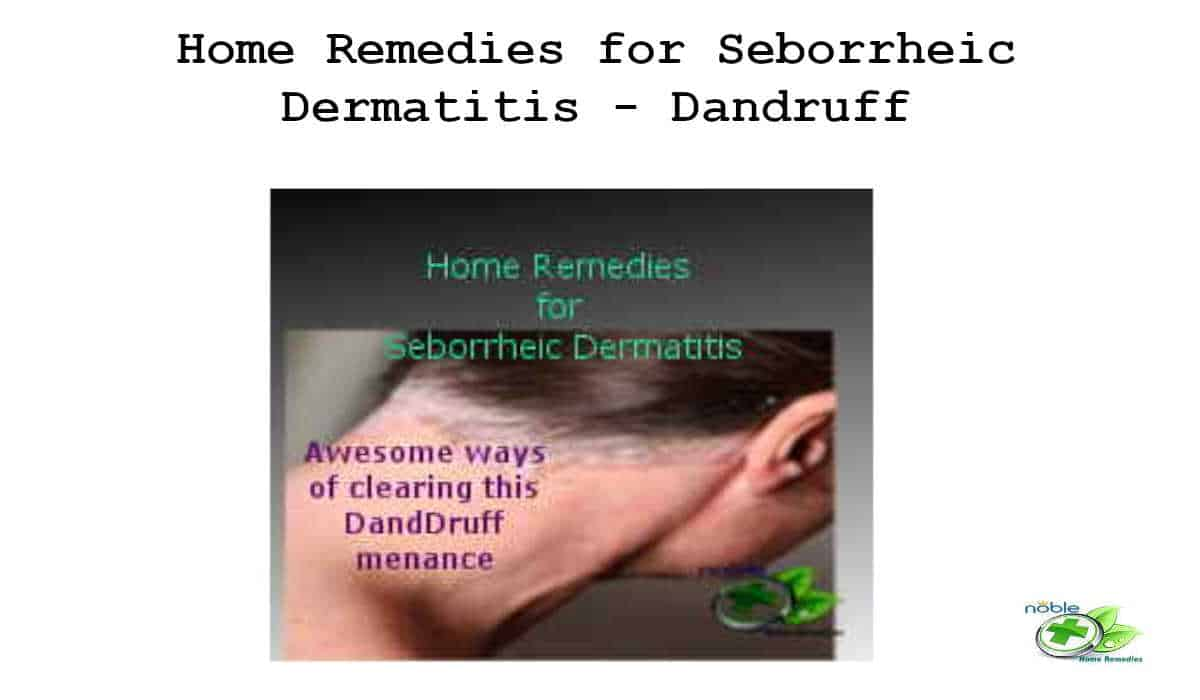 Home Remedies for Seborrheic Dermatitis - Dandruff