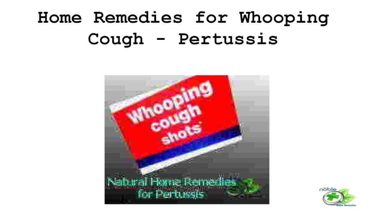Home Remedies for Whooping Cough - Pertussis