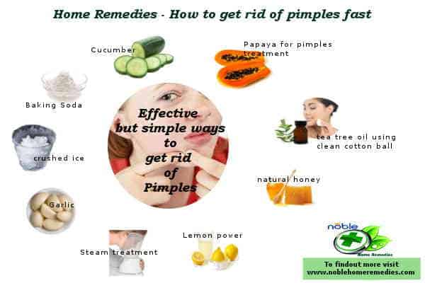 How to get rid of pimples fast - Guide - Home Remedies