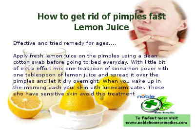 How to get rid of pimples fast - Lemon Juice