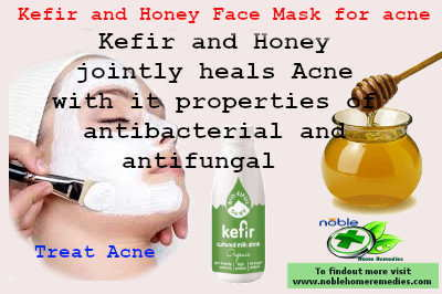 Kefir and Honey Face Mask for acne