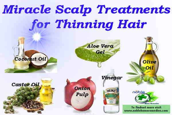 Miracle Scalp Treatment for Thinning Hair guide