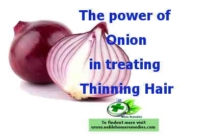 Miracle Scalp Treatment for Thinning Hair - Onion Pulp