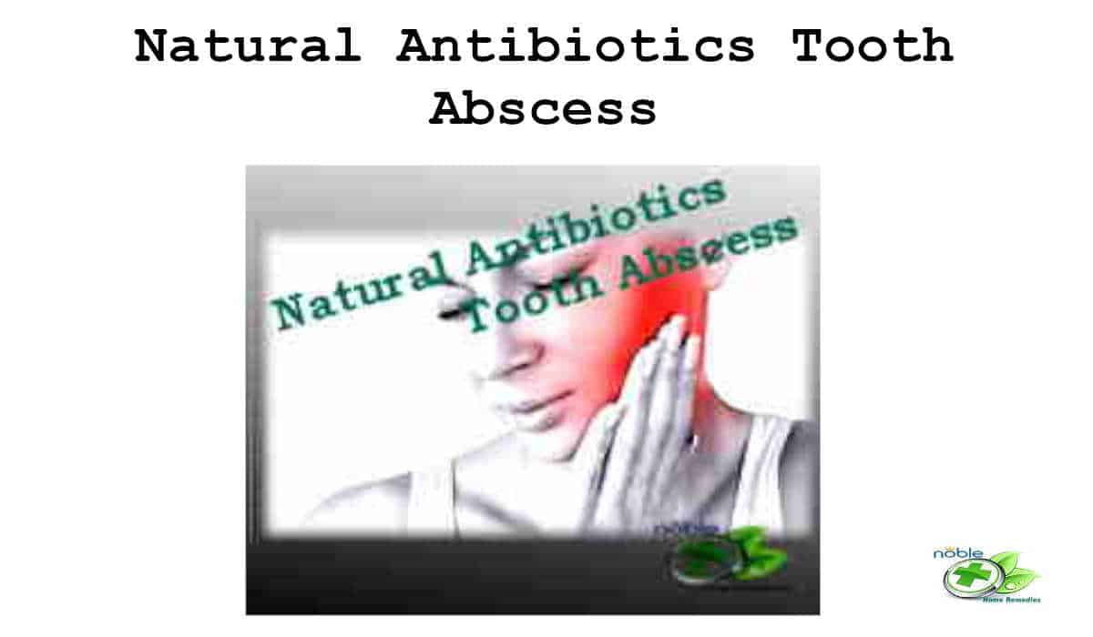 Natural Antibiotics Tooth Abscess