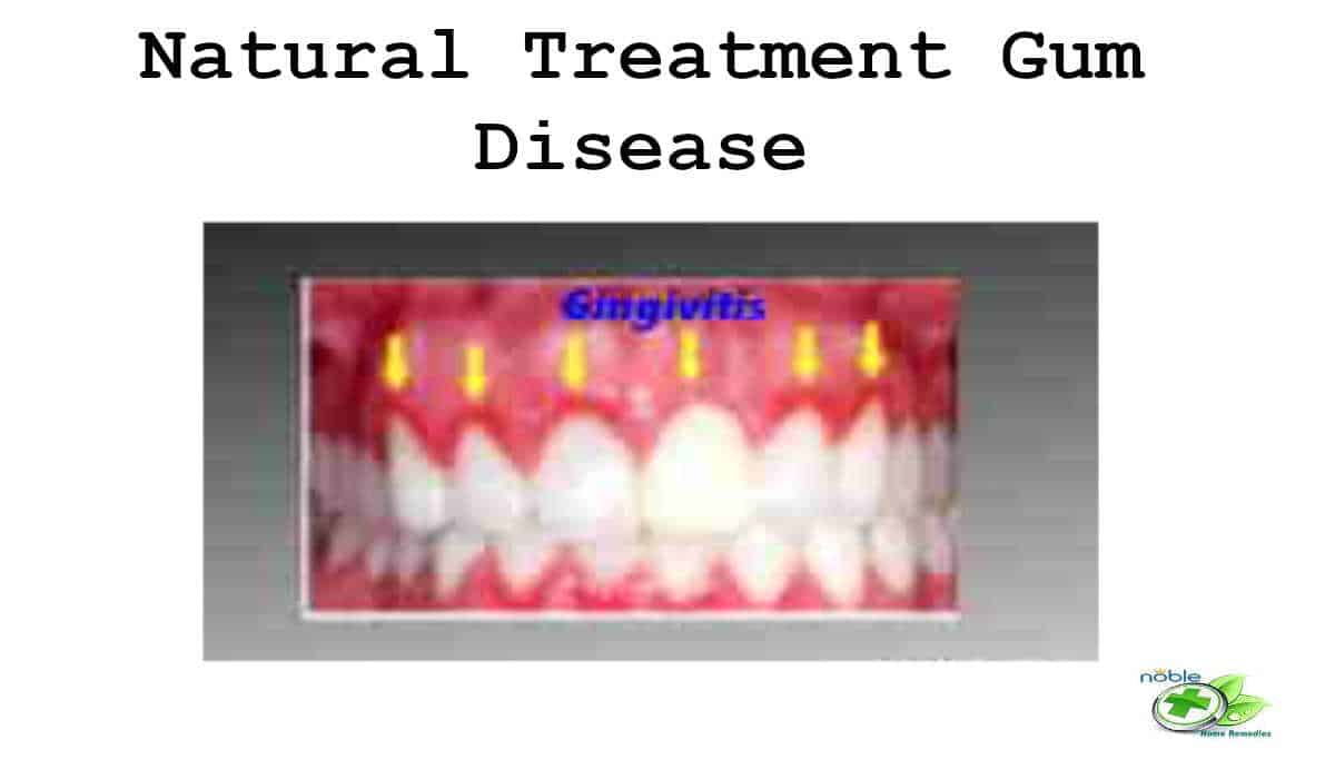 Treatment for Gum Disease