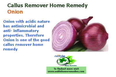 Onion - Callus remover home remedy