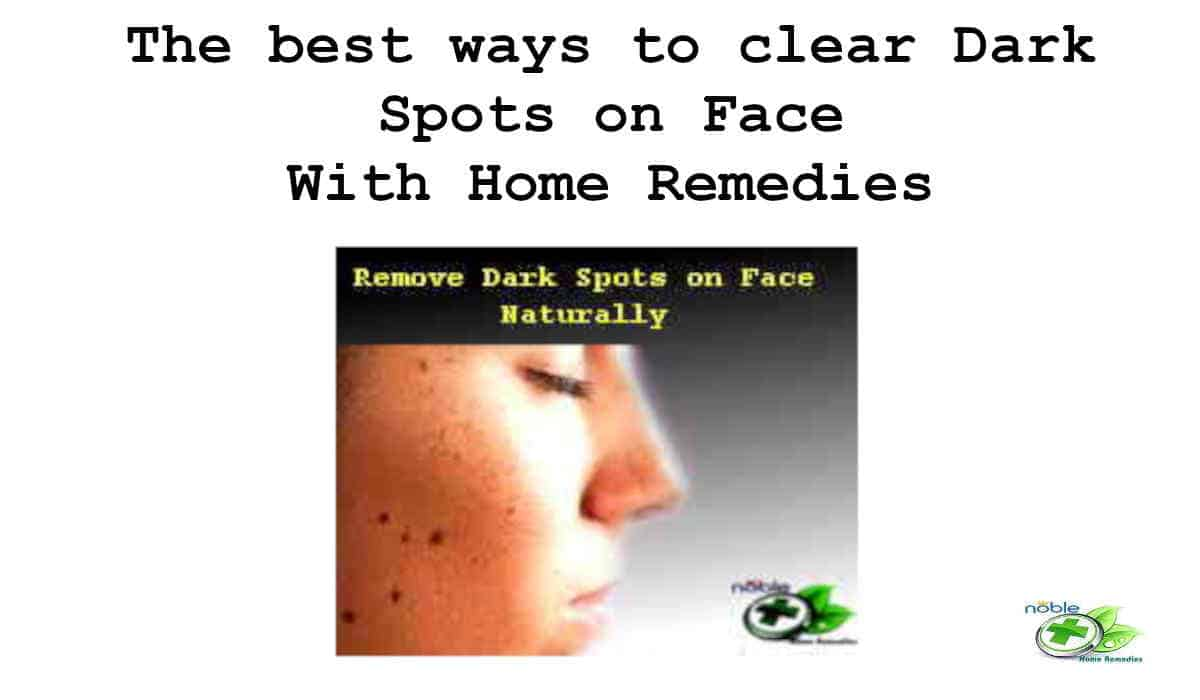 Remove Dark Spots On Face