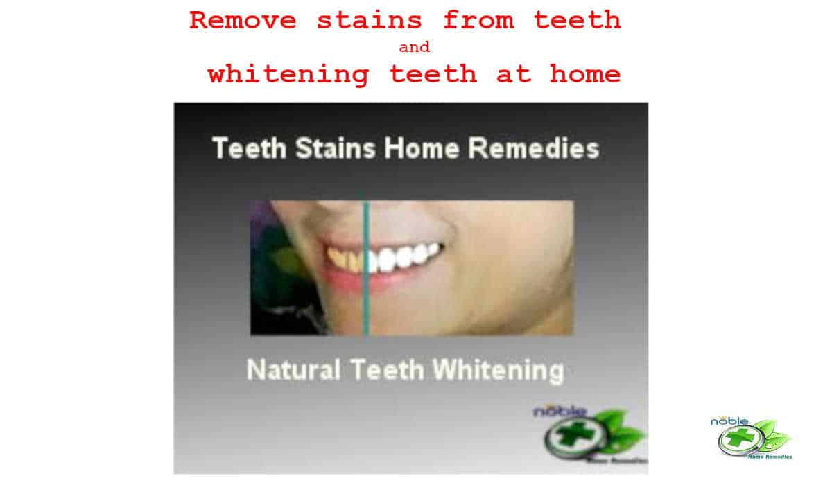 Remove stains from teeth and whitening teeth at home