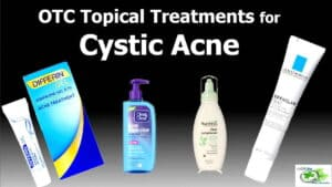 Topical Treatments for Cystic Acne - OTC products