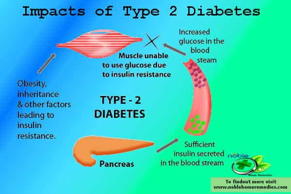 Top 8 Natural Herbs for Diabetes type 2 – Remedies