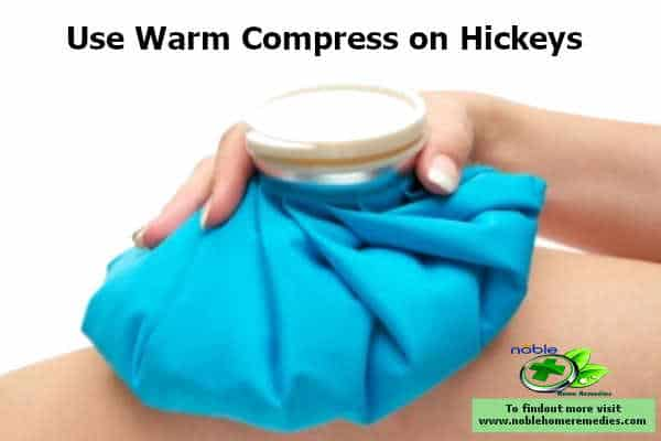 warm compress improves the blood circulation and clears the clotted blood from the hickeys