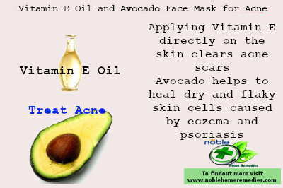 Vitamin E and Avocado Face Mask